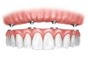 Dental Implant Experts in Vancouver, #Dentalimplants #PainlessDentalimplants #bestdentalimplant @bestdentalimplant #affordabledentalimplant @affordabledentalimplant #LowcostDentalimplants #DentalimplantsBurnaby #AffordableDentalimplant #metalfreeDentalimplant #dentist #vancouverDentist #DentistVancouver #burnabyDentist @all-on4 @bestDentalimplnat @vancouverDentalimplant @vancouverbestdentist @hatedenture @cheapdentalimplant @affordabledentalimplant @bestImplantdentist #dentistBurnaby #painlessimplant #bestDentistVancouver #google #facebook @google @facebook #VancouverBestDentist #BurnabyBestDentist #bestDentistBurnaby #olympicVillageDentist #ImplantDentist #Dentalimplant #DentalimplantVancouver @vancouverDentist @dentistry @dentalimplant