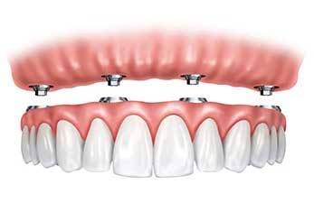vancouver cheap dental implant, affordable dental implant vancouver