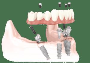 aal-on-4 dental implant